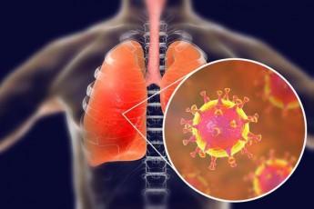 safrangeTSi-koronavirusis-pirveli-SemTxvevebi-gamovlinda
