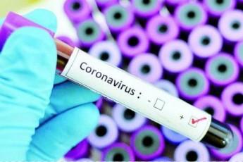 koronavirusis-gamo-CineTTan-kavSirebi-etapobrivad-izRudeba