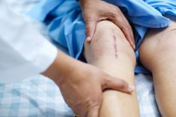 inglisSi-qirurgebma-marjvena-muxlis-saxsris-proTezi-pacients-SecdomiT-marcxena-fexze-dauyenes