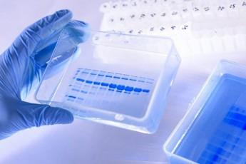 oqsfordis-universiteti-koronavirusis-vaqcinis-gamosacdelad-moxaliseebs-agrovebs