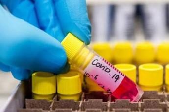 mecnierebma-koronavirusis-samkurnalod-yvelaze-efeqtiani-medikamenti-gamoavlines