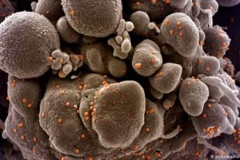 rodesac-virusi-icvlis-gens-vaqcinam-SesaZloa-ar-imuSaos